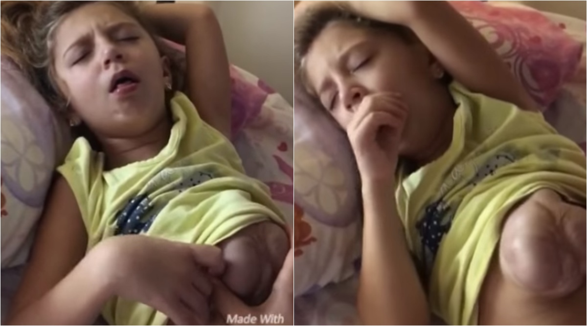 This 7-year-old girl's heart comes out of her chest every time she laughs or coughs (Video)