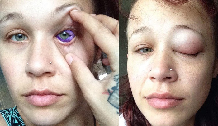 Eyeball tattoo damaging Canadian model's sight
