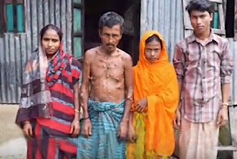 Chandpur man carrying 15 kg tumour for 42 yrs!