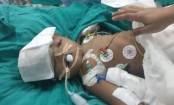 India: Separated twin 'opens eyes' four days after surgery