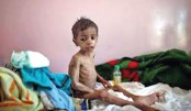 Yemen faces world's biggest famine, warns UN