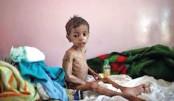 Yemen faces world's biggest famine, warns UN