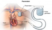 Drug admin fixes prices of valve, pacemaker