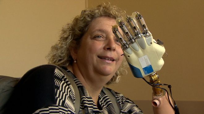 Woman receives bionic hand with sense of touch