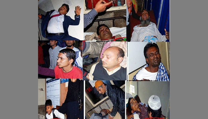 Many AL men hurt in Sylhet as Muhith's car hits them