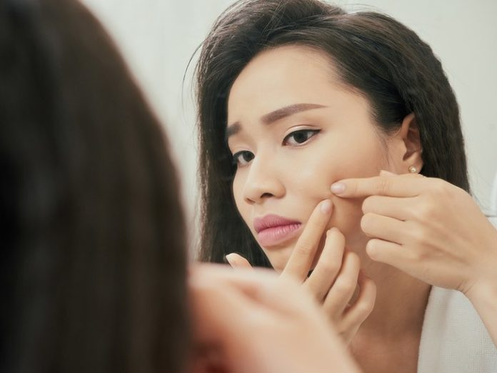 Acne linked to increased depression risk: study