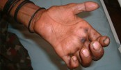 Mass awareness a must to curb leprosy
