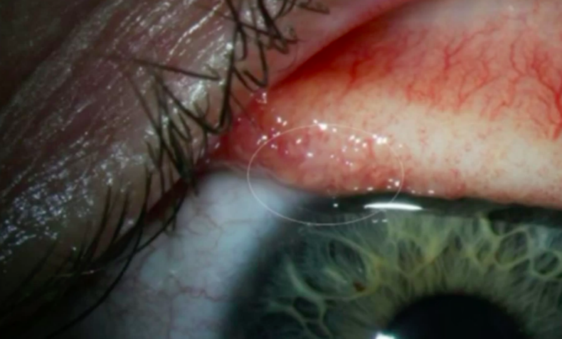 Doctors Remove 14 Worms From Oregon Woman's Eye
