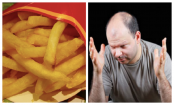 Eating french fries can treat baldness?