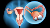 Girls may inherit ovarian cancer gene from fathers