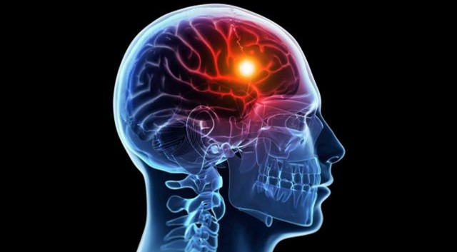 New stroke treatment reduces brain damage, boosts healing