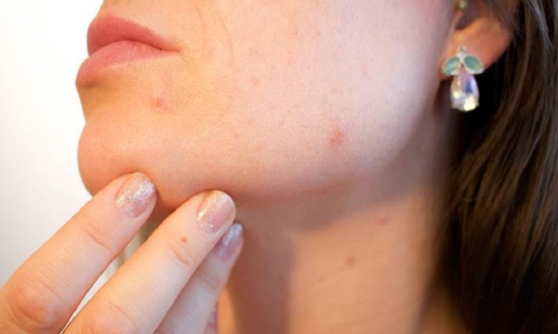Hormonal Acne: Dermatologists reveal the main causes, symptoms and treatments