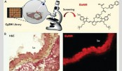 Measuring age of skin and blood vessels