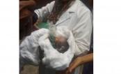 'Dead' baby dies at last