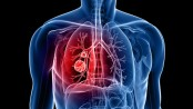 170 potential lung cancer drug targets identified