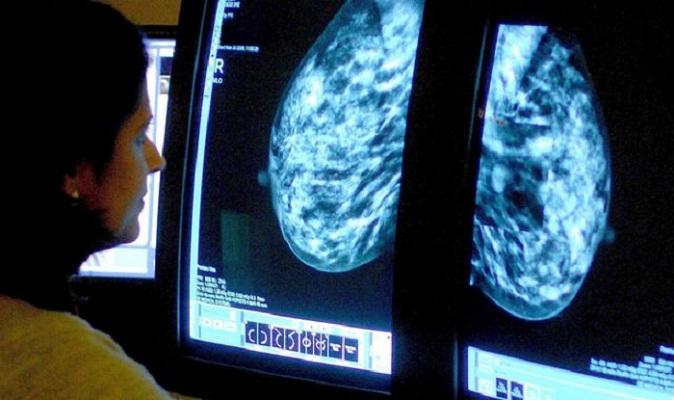 Breast screening error 'shortened up to 270 lives'