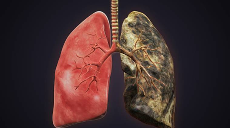 Biomarker for early diagnosis of lung cancer identified