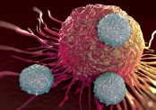 Scientists claim being positive can help tackle cancer