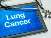 Researchers find pathways that uncover insight into development of lung cancer
