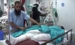 Female RMG worker loses leg in Savar road crash
