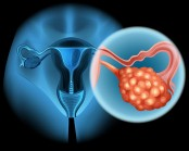 Oral contraceptives could reduce risk of ovarian cancer: Study