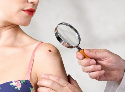 Antibiotic may kill dangerous skin cancer cells, says study