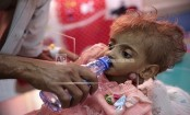 UN humanitarian chief: 8.4 million Yemenis need urgent aid