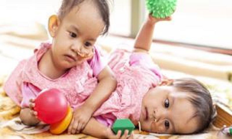 Conjoined twins: Bhutanese girls separated in six-hour surgery