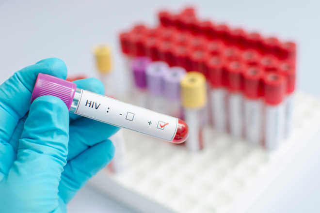 Genetic switch may lead to HIV cure, says study