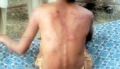 Madrasa boy tortured to death in Cox's Bazar, two held