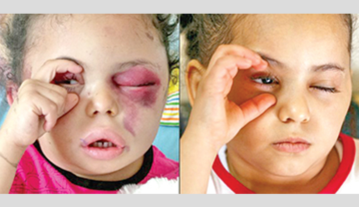 Tragic story makes little girl symbol of Yemen war