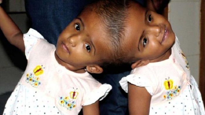 Conjoined twins Rabeya and Rokaiya flying to Hungary