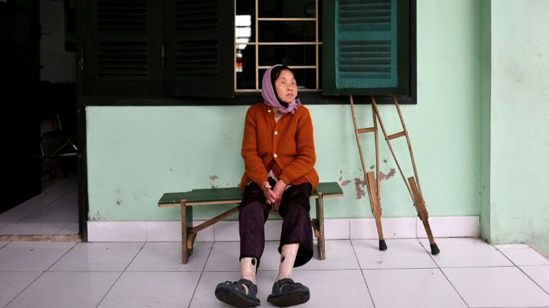 Life after leprosy in Vietnam