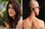 Tahira Kashyap bares her scars in powerful pic on World Cancer Day