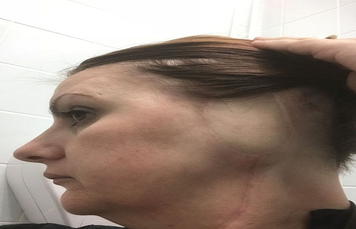 Mum has ear amputated after using sunbeds