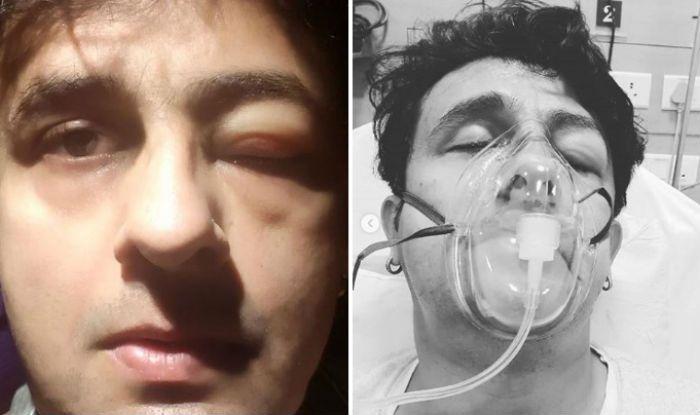 Sonu Nigam hospitalised following seafood allergy