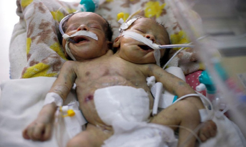 Yemeni conjoined twins die in blockaded Sanaa: Rebels