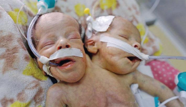 Yemeni conjoined twins die in blockaded Sanaa