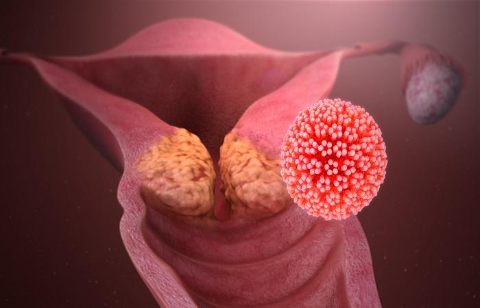 Having HPV 'isn't rude or shameful'