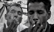 Smoking over 20 cigarettes a day can cause blindness