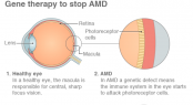 Gene therapy first to 'halt' most common cause of blindness