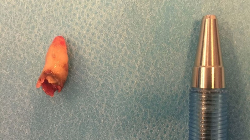 Man's two-year blocked nose caused by tooth growing in nostril
