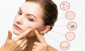 How to treat acne problem the right way