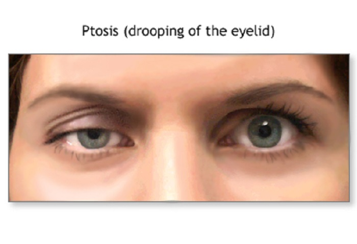 Why your eyelid is drooping?
