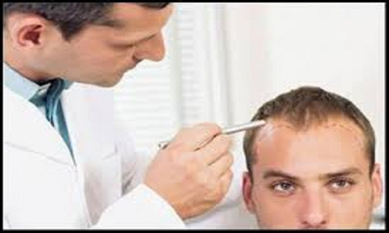 Things to know before getting a hair transplant surgery
