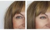 9 cosmetic procedures getting popular in India