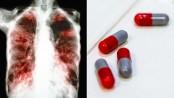 Bangladesh to start producing tuberculosis medicine soon