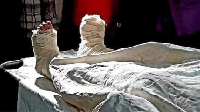 Nusrat's autopsy completed, to be buried in Feni