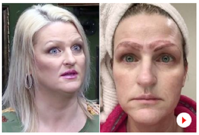 Microblading treatment leaves her with 'four eyebrows'