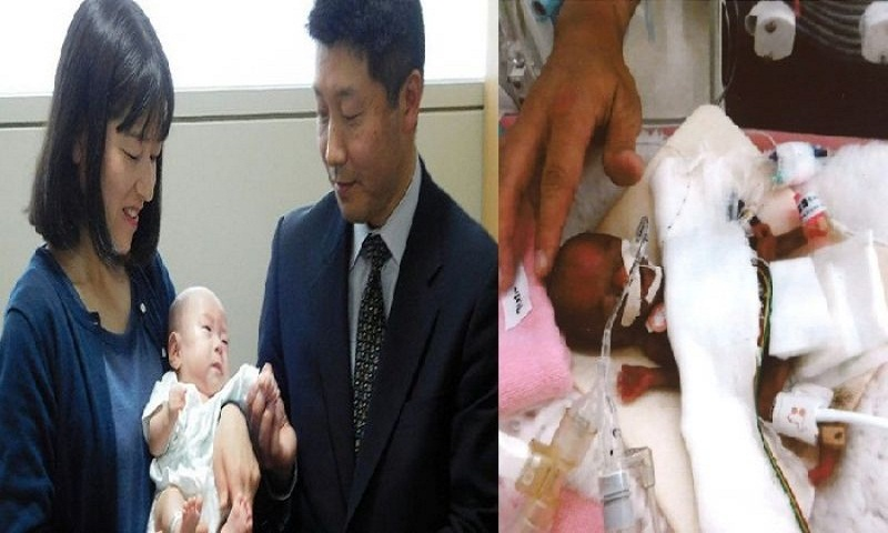 World's smallest baby boy, weighing as much as apple